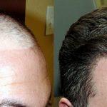 Trapianto di capelli con tecnica F.U.T: come funziona e cosa sapere