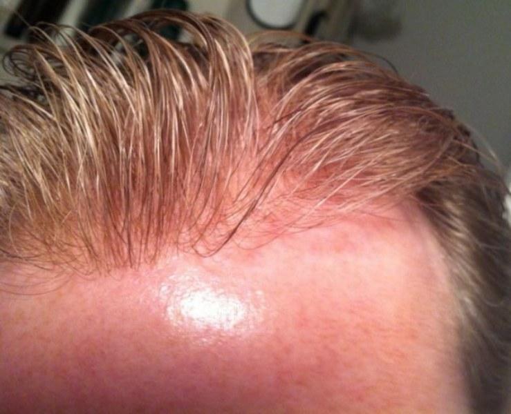 infoltimento-capelli