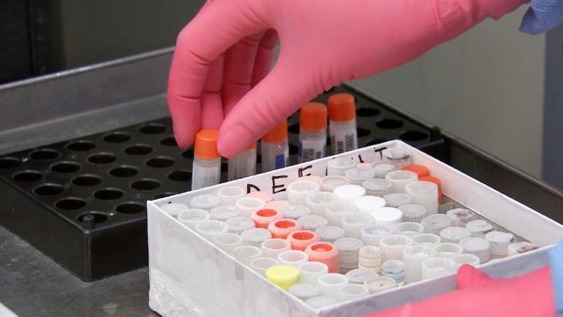 test hiv come perché quando farlo