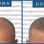 Tricopigmentazione: cos'è?