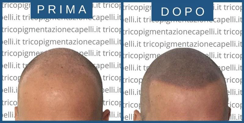 tricopigmentazione_